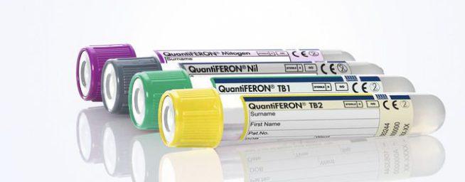 Inovatyvi ir greita tuberkuliozės diagnostika su QuantiFERON TB Gold Plus –  naujos kartos tuberkuliozės tyrimu