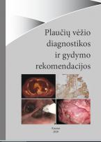 Plaučių vėžio diagnostikos ir gydymo rekomendacijos 2020 m.